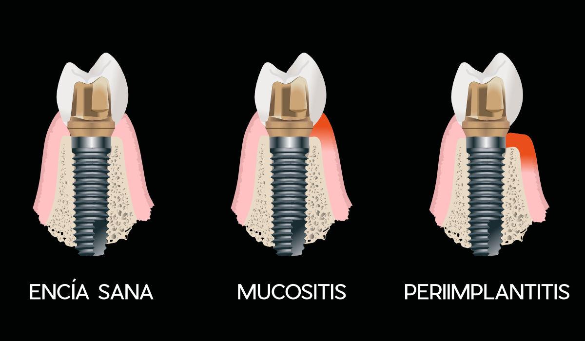 Enfermedades periimplantarias más comunes