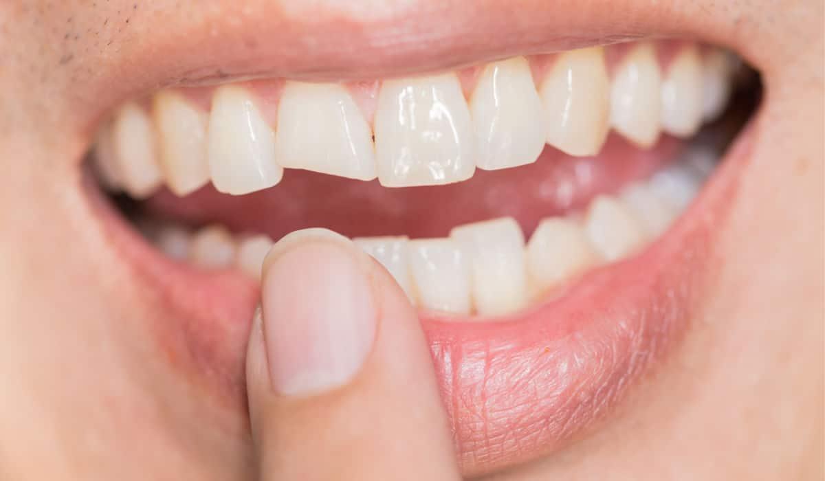 ¿Cómo se trata una fractura dental?